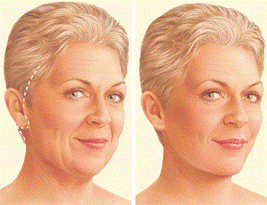 Incision area for a facelift