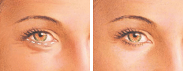 Boston upper eyelid surgery graphic