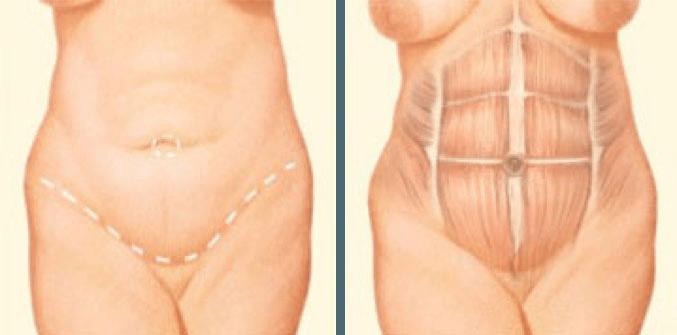 Boston Tummy Tuck Incision graphic