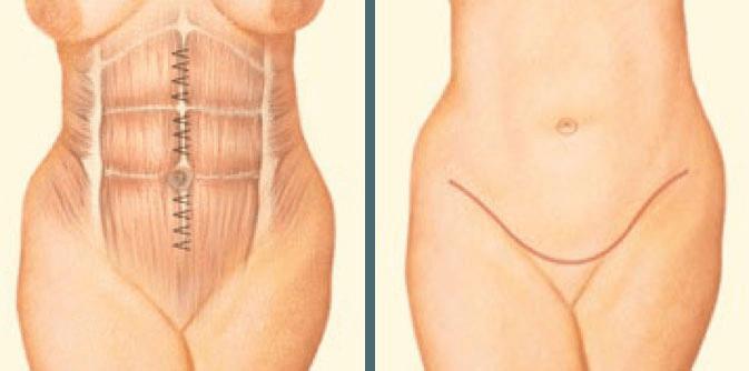 Boston Tummy Tuck internal sutures graphic